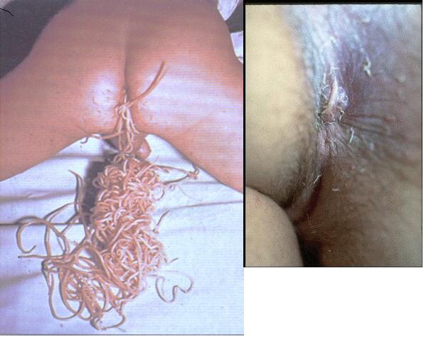 Check Your Ass For Pinworms! Nsfw