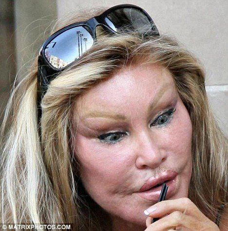itt: Jocelyn Wildenstein
