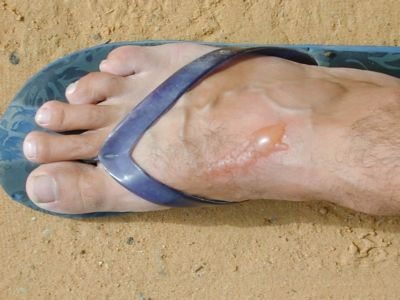 Herpes on feet forum