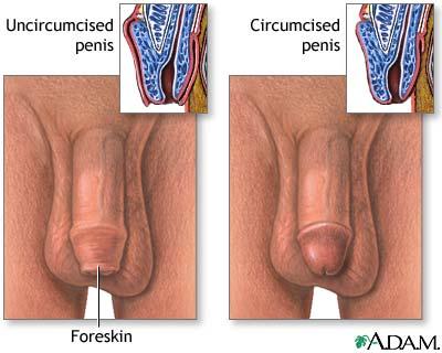 Circumsized dicks