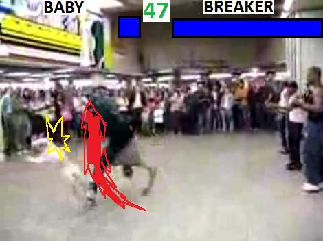 Breakdancing accident