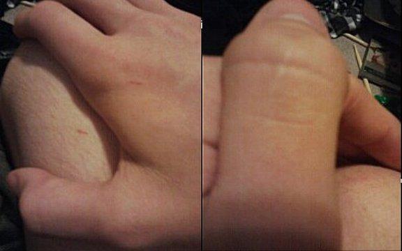 Alien Microchips in my Body
