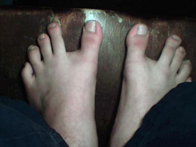 Gap between toes
